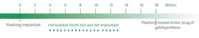 tijdsverloop implantaat behandeling