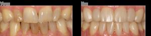 Dahlmethode herstel gebitsslijtage Dental Clinics Leeuwarden Oostergrachtswal