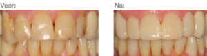Dahlmethode herstel gebitsslijtage Dental Clinics Amsterdam Reguliersgracht