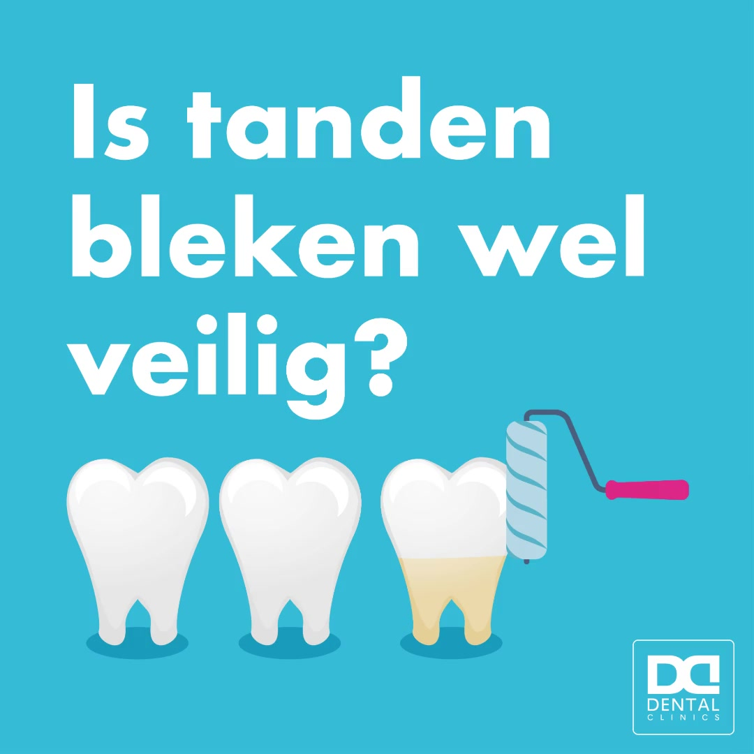 Tanden bleken - Dental Clinics