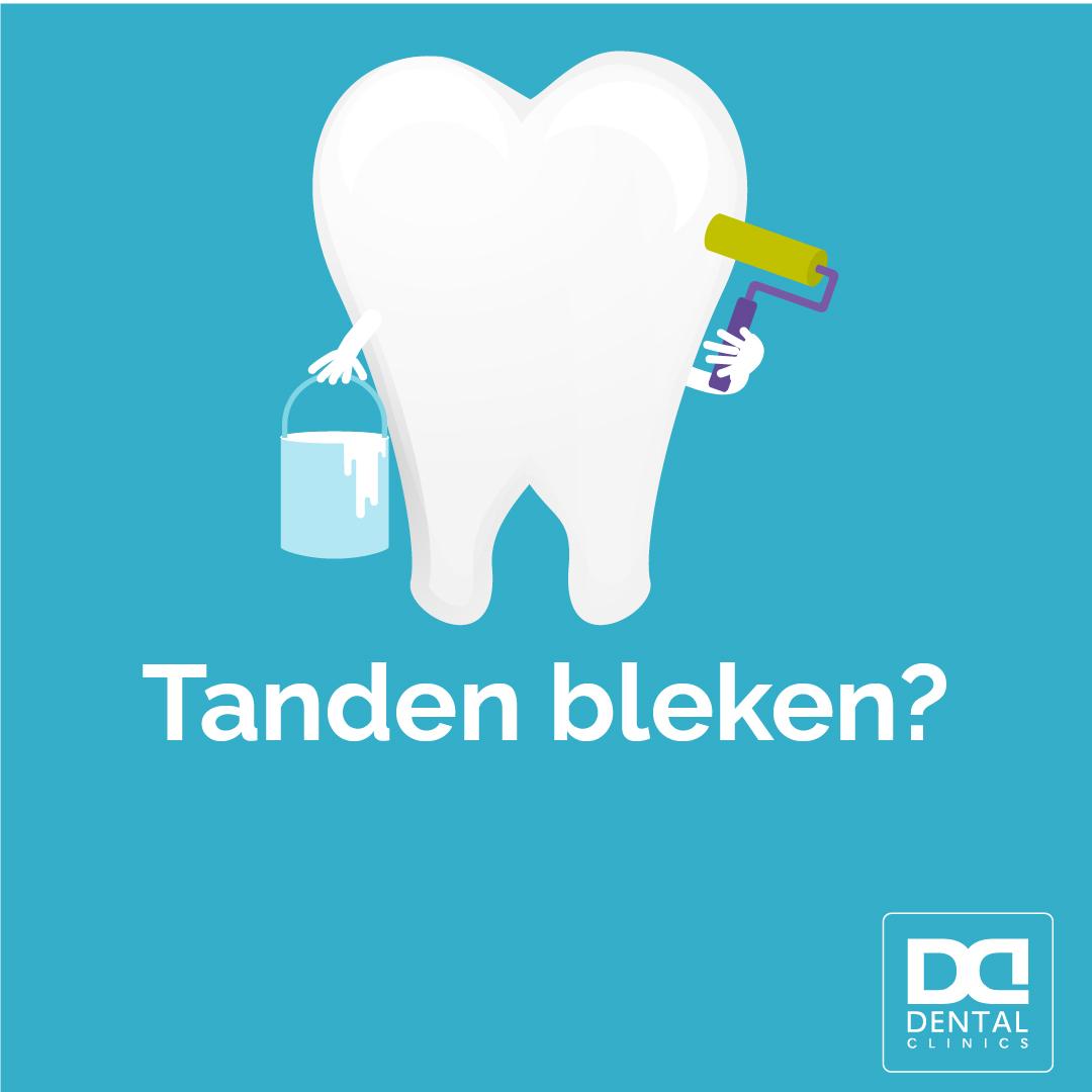 Tanden bleken Dental Clinics - mogelijkheden en kosten
