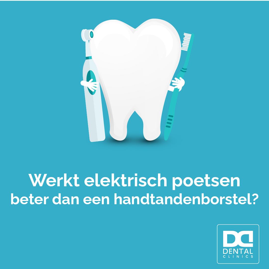 Elektrische tandenborstel of handtandenborstel - Tandartstip Dental Clinics