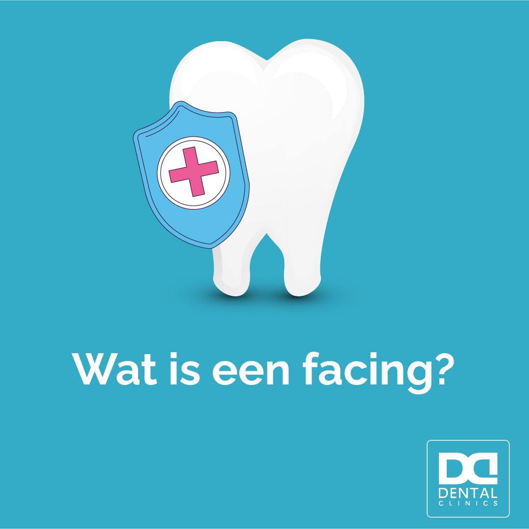 Tandarts Dental Clinics - facings kosten