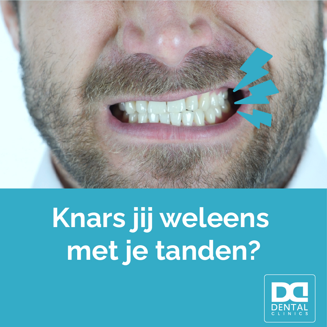 Tandartstip Dental Clinics - tandenknarsen symptomen en oplossing